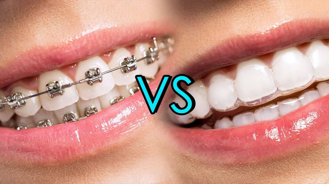 Braces Vs Invisalign - How to Know What Your Child Might Need